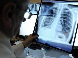 На севере региона построят отделение для больных туберкулёзом